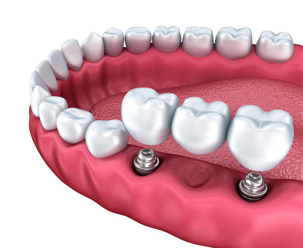 Options to replace a missing tooth? - Cancun Dental Specialists